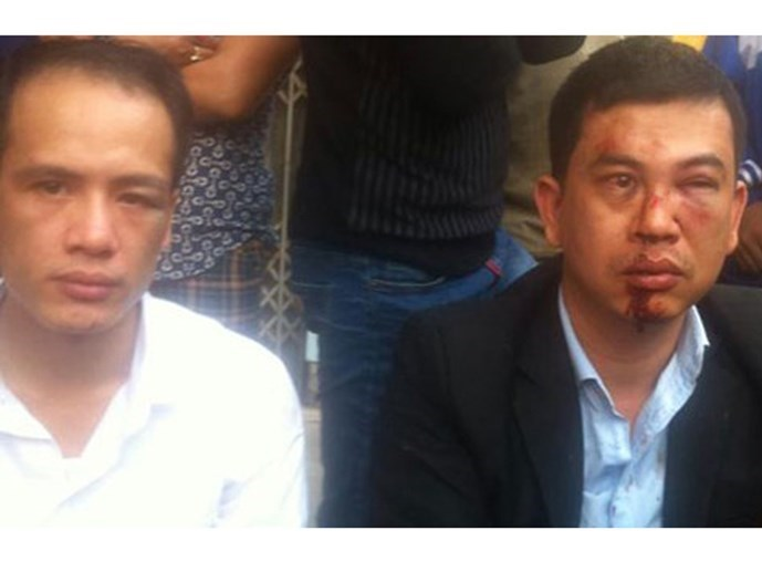 Photos on the Facebook page of lawyer Tran Thu Nam, show Nam (R) and Le Van Luan with facial injuries after the two lawyers were attacked by a group of masked men in Hanoi's Chuong My District on November 3, 2015