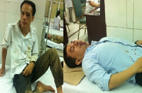 A file photo shows Tran Thu Nam (R) and Le Van Luan with facial injuries after the two lawyers were attacked by a group of masked men in Hanoi on November 3, 2015