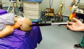 Vietnamese doctors remove knife from pregnant woman's head after freak accident