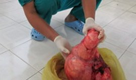Vietnamese woman relived of 7-kilo belly tumor