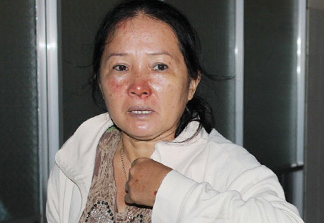 A woman who survives a bus crash that killed three people including the driver in Lam Dong Province August 5, 2014 recalls the accident. Photo credit: VnExpress