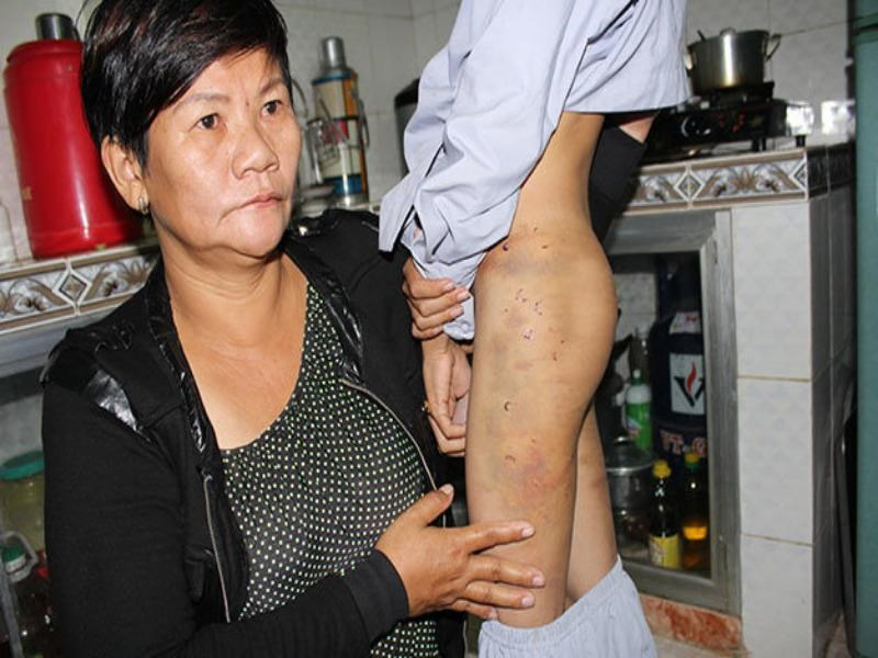 Le Thi Vin shows the scars left on her son by a pagoda manager in Ninh Thuan Province. Photo credit: Tuoi Tre
