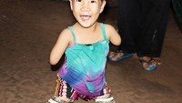Limbless Soc Trang girl lives life to fullest