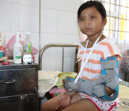 10-year-old Hoang Thi Nhi Linh is under treatment at a hospital in Quang Tri Province after her own father beaten her to force her mother to come back to him. Photo: Nguyen Phuc