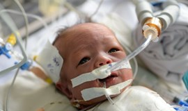 Two-week-old baby survives complex heart surgery in Vietnam