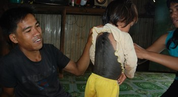 A little girl with black hairy back at her home in Gia Lai Province. Photo credit: Tuoi Tre