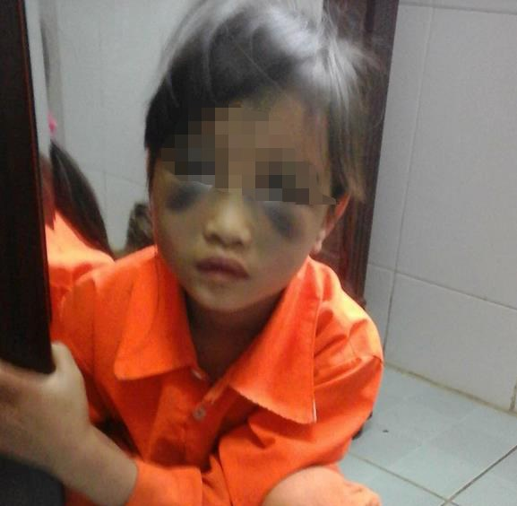 A photo posted on Facebook shows a 6-year-old girl with bruises allegedly caused by her teacher.