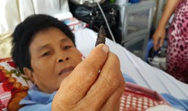 Vietnamese woman has bullet removed from body 45 years after war