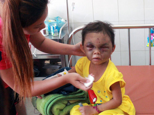 Vietnam couple arrested, probed for torturing 3-year-old child