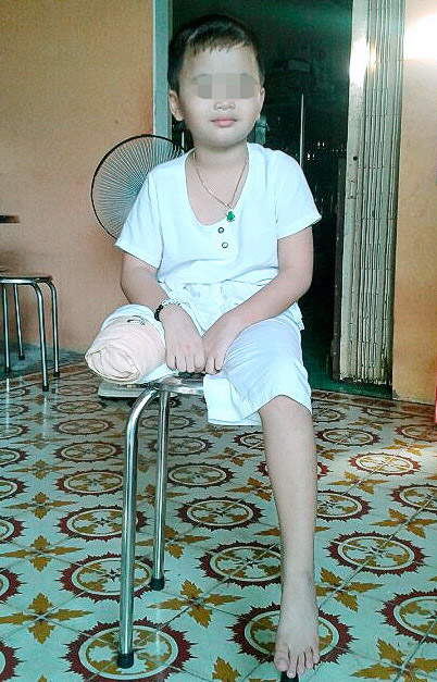 Senior official says hospital negligence caused 8-year-old son to lose leg